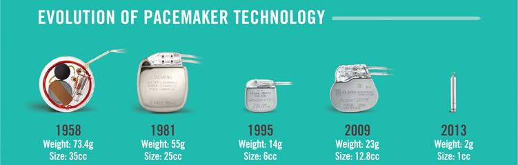 Leadless Pacemaker technology