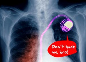 Wireless Pacemaker Technology